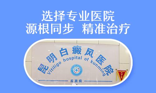 昆明白斑医院哪家好好的医院/脸上长了白癜风怎么治才会好